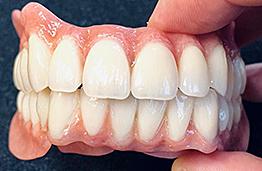 Teleskop art dental zahntechnisches meisterlabor weiden i d
